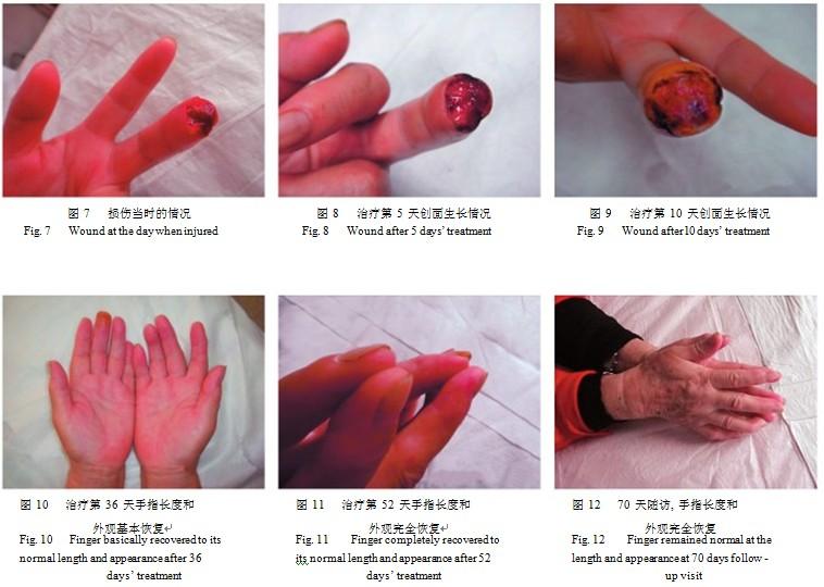 应用mebo 治疗皮肤软组织缺损伤临床报告